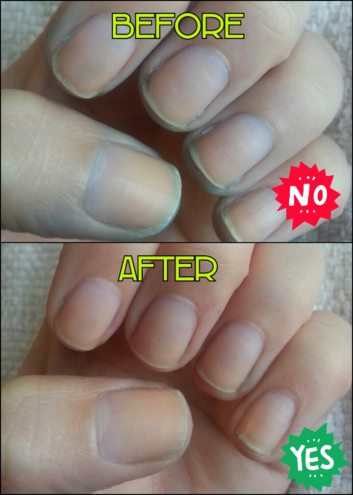 Protip How To Get Rid Of Stained Nails Diy Nood Mood
